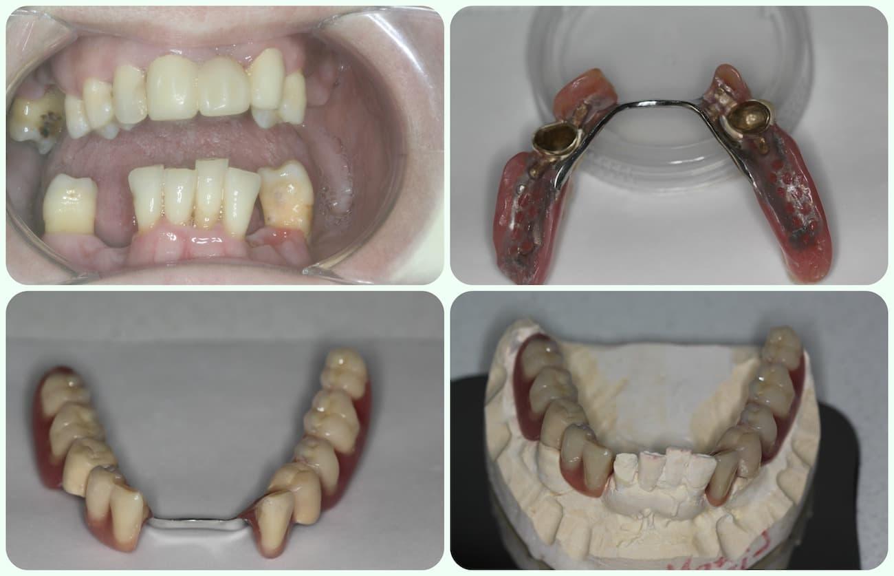 Telescopic denture cyprus happy smile