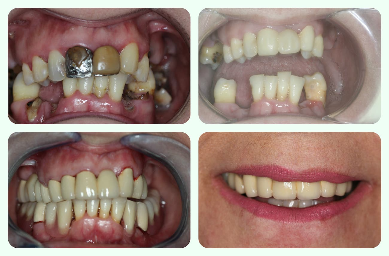 Telescopic denture: dentures plates u castle hill kellyville