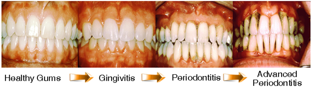 Periodontal-Gingivitis-Progression